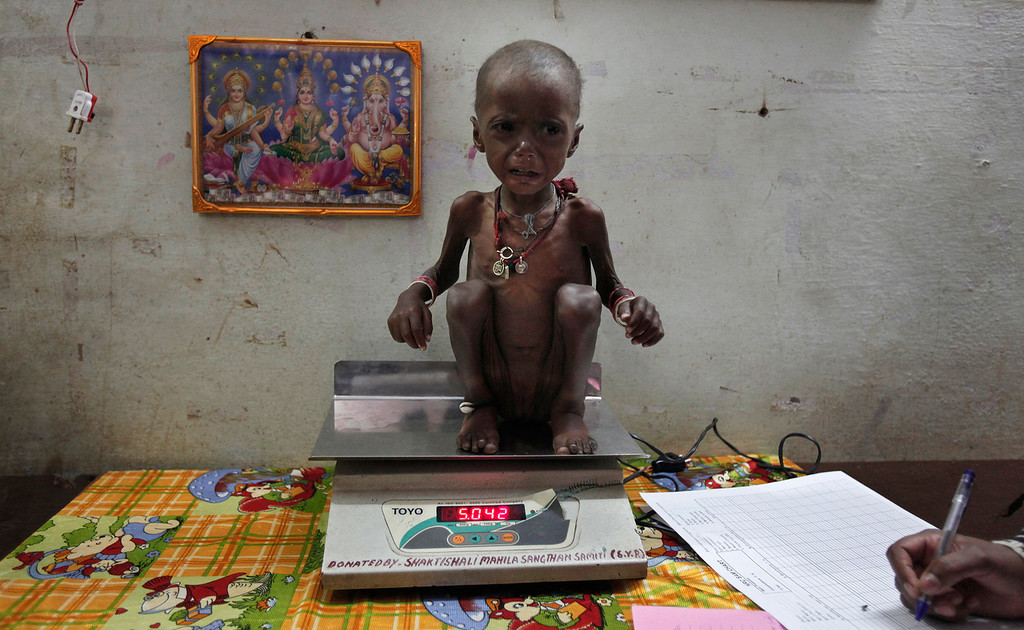 Description of . Severely malnourished two-year-old girl Rajni is weighed by health workers at the Nutritional Rehabilitation Centre of Shivpuri district in the central Indian state of Madhya Pradesh February 1, 2012. India has failed to reduce its high prevalence of child malnutrition despite its economy doubling between 1990 and 2005 to become Asia's third largest. A government-supported survey last month said 42 percent of children under five are underweight - almost double that of sub-Saharan Africa - compared to 43 percent five years ago. The statistic - which means 3,000 children dying daily due to illnesses related to poor diets - forced Prime Minister Manmohan Singh to admit last month that malnutrition was