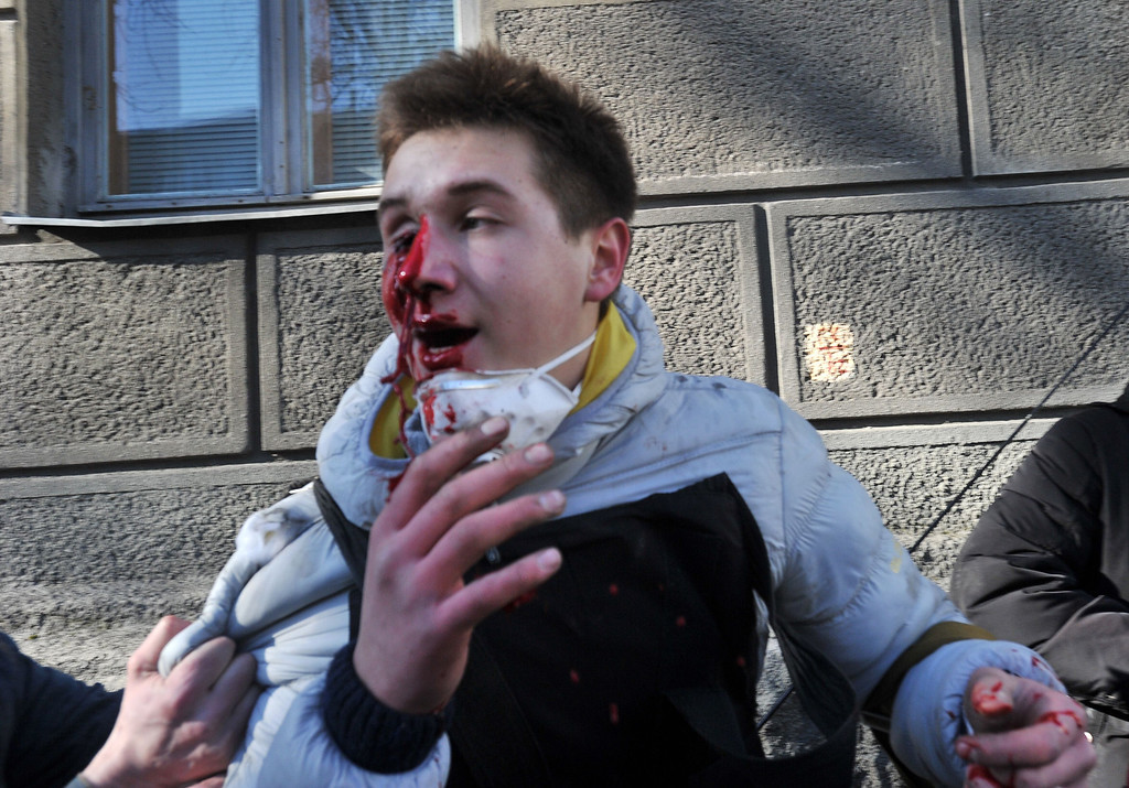 Description of . A wounded anti-government protester is pictured during clashes with police in Kiev on February 18, 2014.  AFP PHOTO / GENYA SAVILOV/AFP/Getty Images