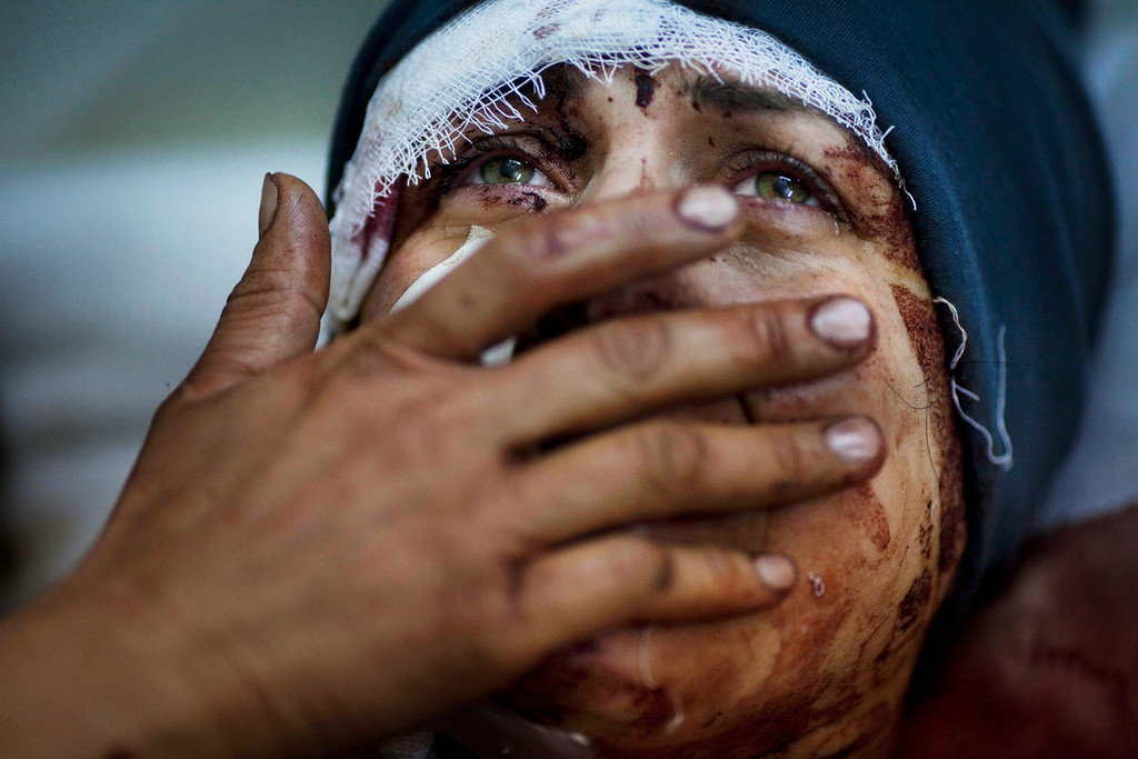 Description of . In this March 10, 2012 file photo, Aida cries as she recovers from severe injuries after the Syrian Army shelled her house in Idlib, north Syria. Aida's husband and two of her children were killed after their home was shelled. (AP Photo/Rodrigo Abd, File)