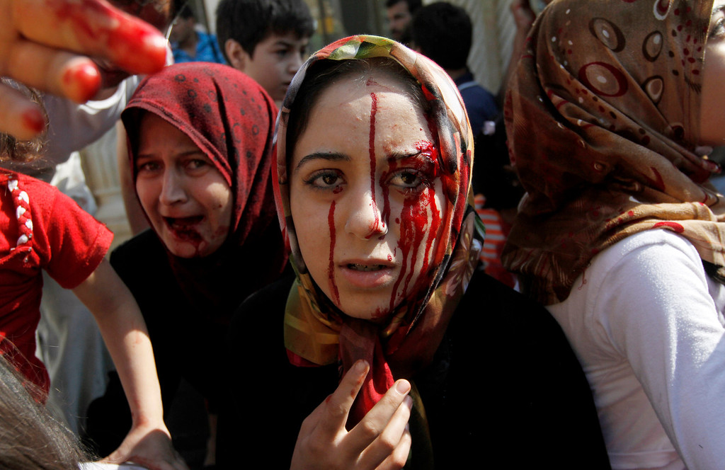 Description of . FILE - Injured Syrian women arrive at a field hospital after an air strike hit their homes in the town of Azaz, on the outskirts of Aleppo, Syria, Wednesday, Aug. 15, 2012. (AP Photo/Khalil Hamra, File)