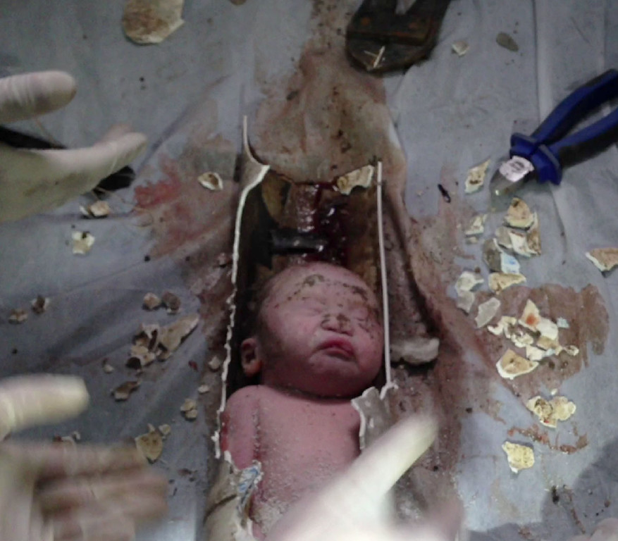 Description of . This frame grab taken from AFPTV footage received on May 28, 2013, shows rescue workers breaking away bits of a pipe to remove a newborn baby boy stuck inside in the city of Jinhua, in the eastern province of Zhejiang, China.  The newborn baby boy was rescued from a sewage pipe in an apartment building after being flushed down a toilet, state media said, provoking online outrage.  AFPTV/AFP/Getty Images