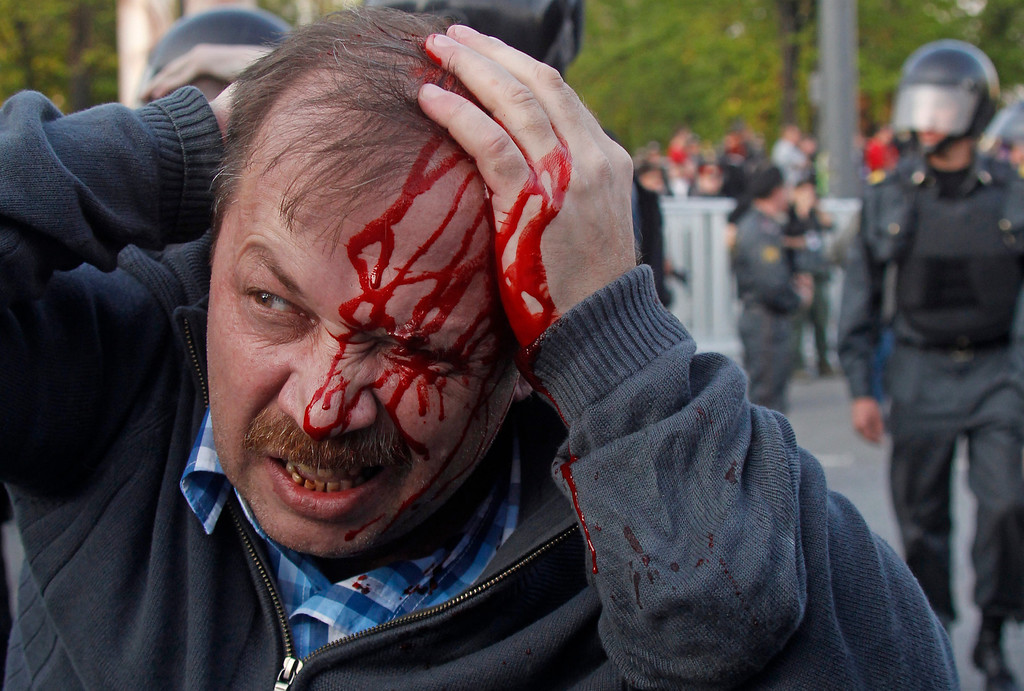 Description of . In this May 6, 2012 file photo, a wounded opposition protester winces in pain during a rally in Moscow. Riot police in Moscow began arresting protesters who were trying to reach the Kremlin in a demonstration on the eve of Vladimir Putin's inauguration as president. (AP Photo/Mikhail Metzel, File)
