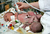 Doctors examine conjoined twins that were one day old on March 14, 2006 in Minsk, Belarus. The doctors are trying to determine the best possible solutions for the twins, which were joined at the pelvis. After an initial exam, they will operate and try to save just one of the twins. A 1995 United Nations report stated that the Chernobyl disaster caused a 250% increase in congenital birth deformities.  On April 26, 1986, reactor number four at the Chernobyl Nuclear Power Station on the border of the Ukraine and Belarus exploded. The fire, which burned out of control for five days, spewed more than 50 tons of radioactive fallout across Belarus. The wind carried the heaviest radioactive deposits across Belarus, where even today a large portion of the land is considered uninhabitable. The government denied the accident happened for several days, allowing the people in the Gomel region of Belarus to linger in the radiation. The cause of the medical illnesses are often hard to find, and much harder to prove. But, the rise in the number of cancer cases and other health problems in this region is too great for any other conclusion ? it has to be the radiation.  (Photo by Ezra Shaw/Getty Images)