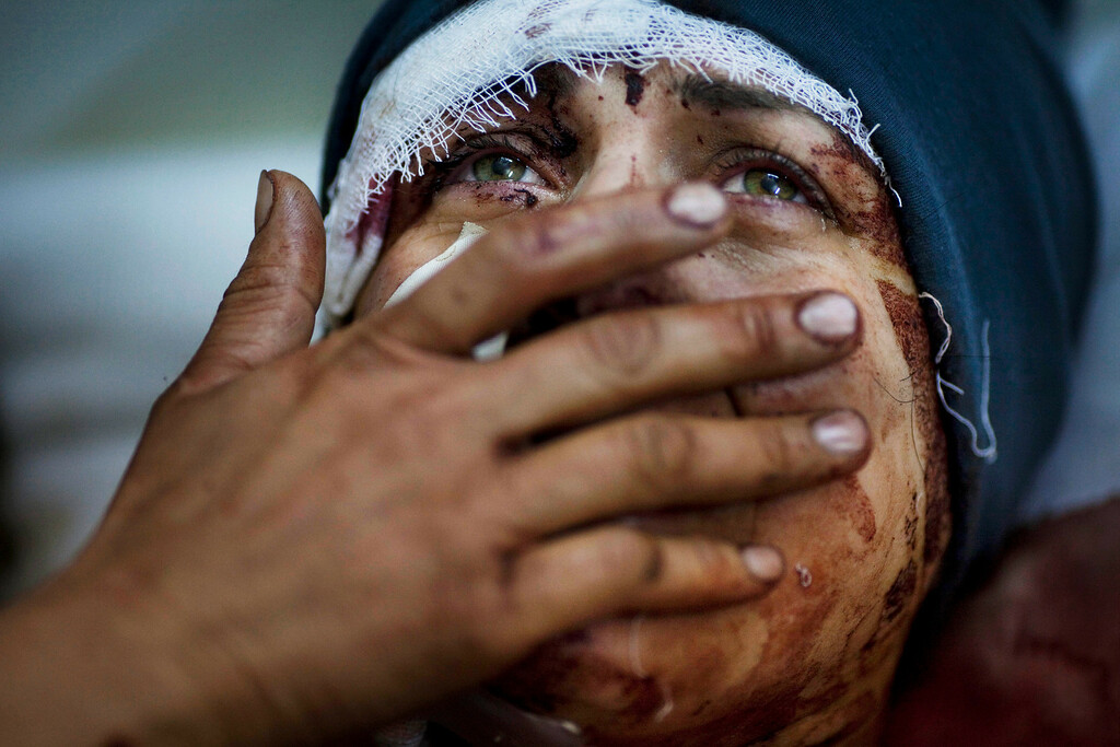 Description of . FILE - Aida cries as she recovers from severe injuries after the Syrian Army shelled her house in Idlib, north Syria, Saturday, March 10, 2012. Aida's husband and two of her children were killed after their home was shelled. (AP Photo/Rodrigo Abd, File)