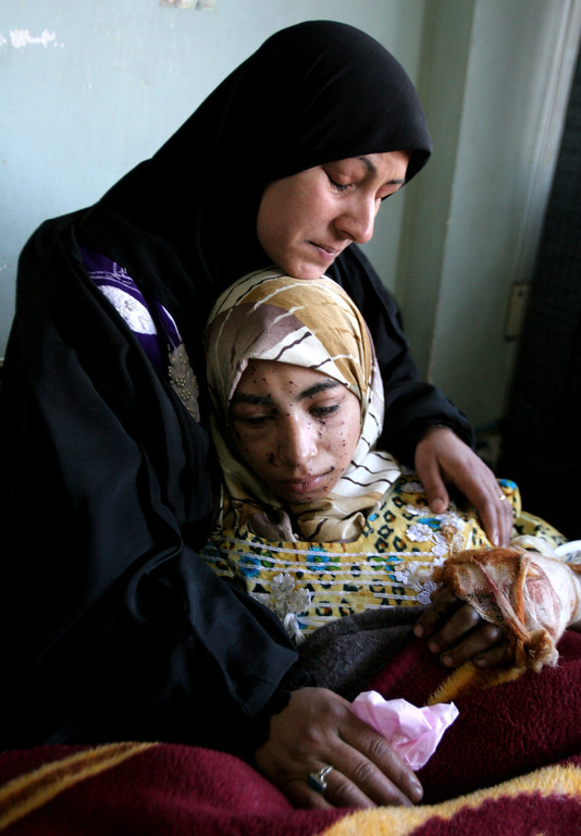 Description of . Her  mother, no first name available, comforts 18 year old Fatimah Krim at a hospital in Baghdad, Iraq, Wednesday Jan. 17, 2007. Twin car bombs tore through a leading Baghdad University as students left classes in the deadliest attack in Iraq in nearly two months killing at least 65 students. (AP Photo/Karim Kadim)