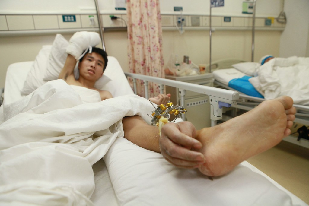""". This picture taken on December 4, 2013 shows Xie Wei (L) lying on his hospital bed with his hand grafted to his ankle in a hospital in Changsha, central China\'s Hunan province.  Chinese doctors have saved his severed hand by grafting it to his ankle, local media reported. Xie Wei lost his right hand in an accident at work but could not have it reattached to his arm right away. Doctors kept the hand alive by stitching it to his left ankle and \""""borrowing\"""" a blood supply from arteries in the leg. Later they managed to replant the hand back on his arm. AFP PHOTOSTR/AFP/Getty Images"""