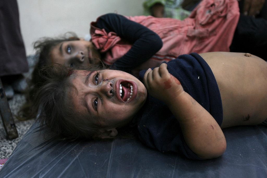 Description of . A wounded Palestinian girl cries in a hospital who was brought after Israeli shelling in Rafah in the southern Gaza Strip, Friday, Aug. 1, 2014. (AP Photo/Eyad Baba)