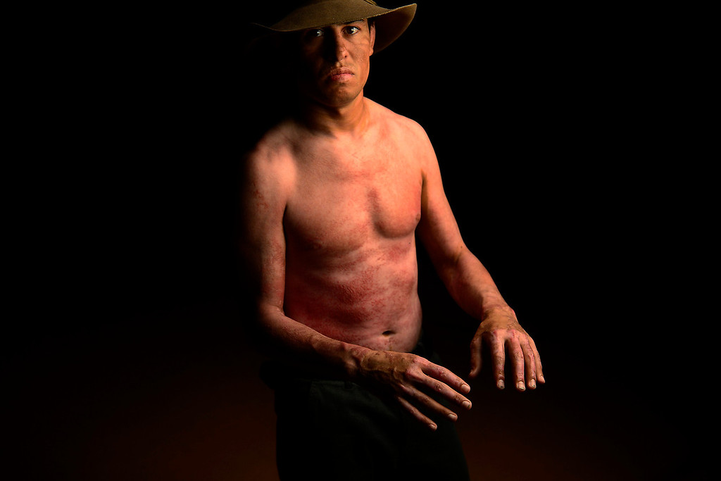 . PAGOSA SPRINGS, CO. - JUNE 6: Michael Martinez, 27, two-time state wrestling champion at Pagosa Springs High School and three-time Western Wrestling Conference champion at Wyoming, survived a propane explosion on April 2, 2013, that blew up a camper on his parents ranch. Eighty percent of his body was covered in 2nd and 3rd degree burns.  (Photo By Mahala Gaylord/The Denver Post)