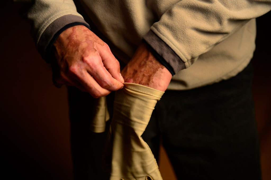. PAGOSA SPRINGS, CO. - MAY 6: Michael Martinez wears fingerless gloves to protect the skin grafts he received on the back of his hands after surviving a propane explosion two months ago.  (Photo By Mahala Gaylord/The Denver Post)