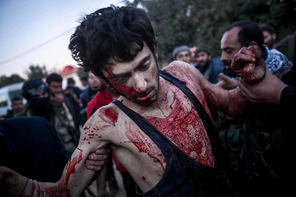 . FILE - People help a wounded Free Syrian Army fighter during heavy clashes with government forces at a military academy besieged by rebels north of Aleppo, Syria, on Saturday, Dec. 15, 2012. (AP Photo/Narciso Contreras, File)