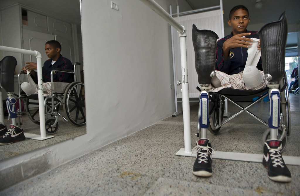 . Colombian soldier Mario Ballesteros, victim of a land mine 15 months ago, gets ready to put on his new prosthesis at the Heroes de Paramillo hospital  in Medellin, Antioquia department, Colombia on September 11, 2013. The Heroes de Paramillo hospital is the first in Latin America for soldiers victims of land mine explosions. According to the government and human rights organizations, Colombia is one of the countries with the largest number of land mine victims.  RAUL ARBOLEDA/AFP/Getty Images