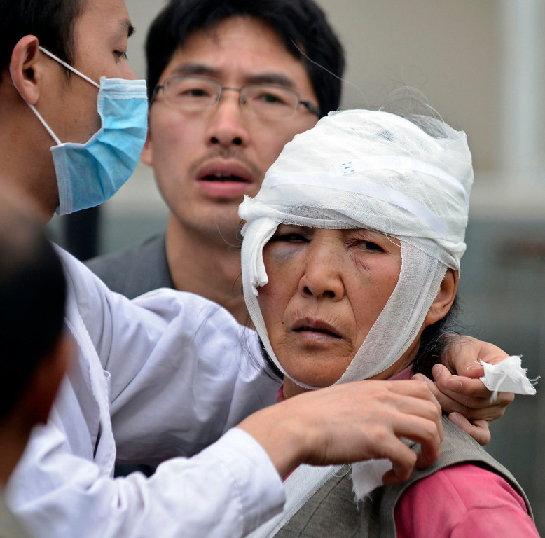 . An injured woman looks up as she is being treated after a strong 6.6 magnitude earthquake hit the remote, mostly rural and mountainous Lushan county, Ya\'an, Sichuan province, April 20, 2013. The earthquake on Saturday killed at least 156 people and injured about 5,500 close to where a big quake killed almost 70,000 people in 2008. REUTERS/Stringer