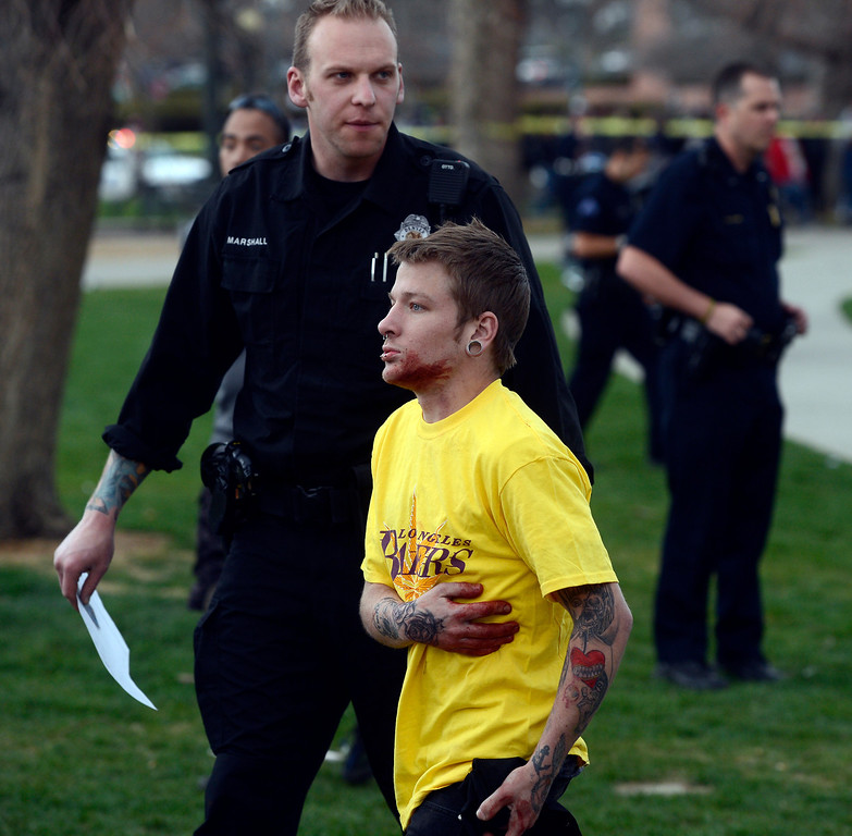 . DENVER, CO. - APRIL 20TH: Shawn East, grabs his rib cage and has blood on his face and his hands at Civic Center Park after a shooting there after a 4/20 rally Saturday afternoon, April 20th, 2013. (Photo By Andy Cross/The Denver Post)