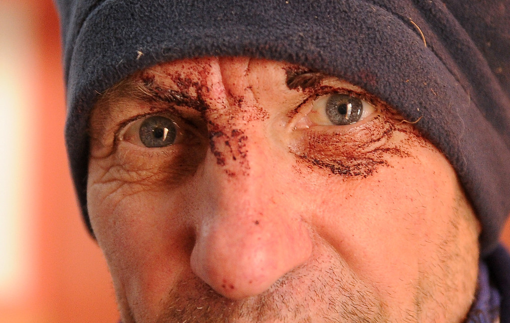 . Musher Hans Gatt has dried blood around his eyes after coming off the Farewell Burn and into the Nikolai, Alaska, checkpoint during the 2014 Iditarod Trail Sled Dog Race on Tuesday, March 4, 2014. Gatt hit a tree on the Burn just outside of Rohn. (AP Photo/The Anchorage Daily News, Bill Hallinen)