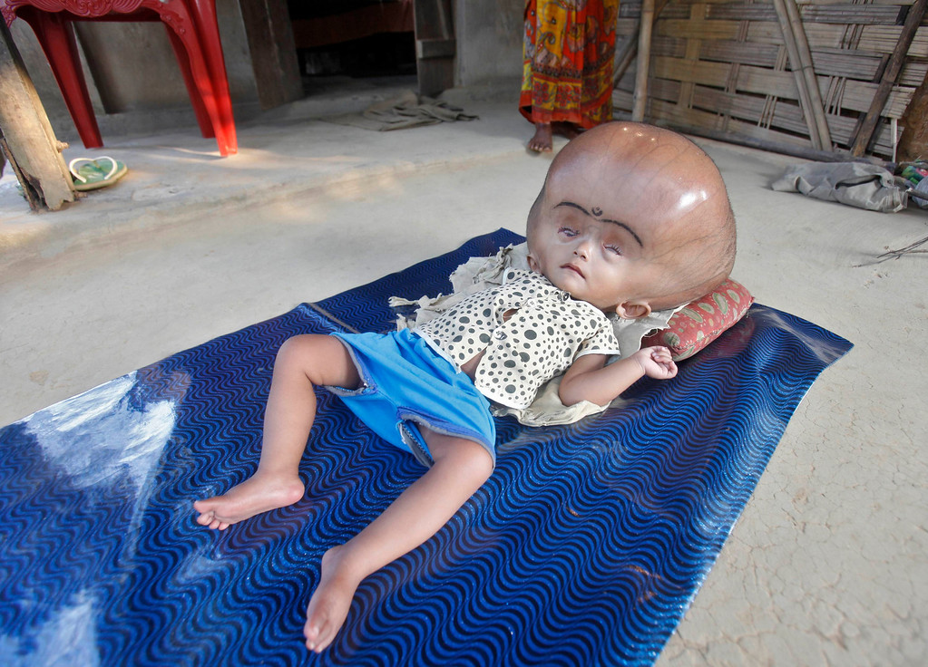 . 16-month-old Runa Begum, who suffers from Hydrocephalus, a medical condition that causes abnormal accumulation of fluid in cavities of the brain, rests inside her house at Jirania Khola village in India\'s northeastern state of Tripura April 12, 2013. Fatima, mother of Begum, says her daughter has been suffering since she was born and the doctors in the region are unable to improve the condition of her child. Begum\'s father Abdul Rehman, who works in a brick factory, says that they are unable to treat their daughter due to their financial problems. REUTERS/Jayanta Dey