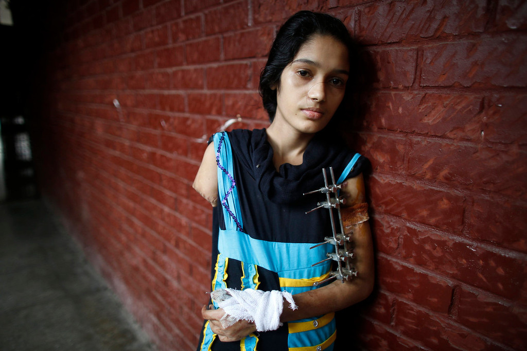 . Rasheda, 15, who used to work for Abul Khair Steel Mills Ltd, stands outside a ward of the National Institute of Traumatology and Orthopaedic Rehabilitation in Dhaka, July 4, 2013. Rasheda said she lost one of her hands and another one has been critically injured in an accident while working for the steel company in Chittagong, Bangladesh. International attention has been focused on workers\' safety in Bangladesh since the disaster at Rana Plaza, a garment factory complex which collapsed in April, killing 1,132 workers.  REUTERS/Andrew Biraj