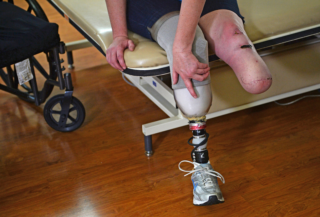 . Kristin Hopkins, who survived almost a week trapped in her wrecked car, gets her new prosthetics after both legs were amputated, June 20, 2014. (Photo by RJ Sangosti/The Denver Post)