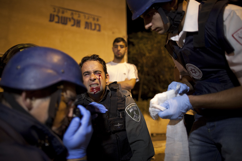 . JERUSALEM, ISRAEL - MAY 16:  A wounded Israeli riot policeman is treated after he was hit by a stone from ultra-Orthodox demonstrators on May 16, 2013 in Jerusalem, Israel. Tens of Thousands of ultra-Orthodox Israelis have clashed with police after gathering to protest against newly proposed government legislation that would see them drafted into the military. (Photo by Uriel Sinai/Getty Images)