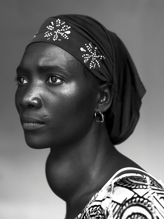 ". Stephan Vanfleteren of Belgium, a Panos photographer working for Mercy Ships/De Standaard, has won the first prize in the People - Staged Portraits Stories category of the World Press Photo Contest 2013 with the series ""People of Mercy, Guinea\"". The picture shows Makone Soumaoro, 30,  who has a goiter, in Conakry, taken on October 17, 2012 and distributed by th REUTERS/Stephan Vanfleteren/Panos/World Press Photo/Handout"