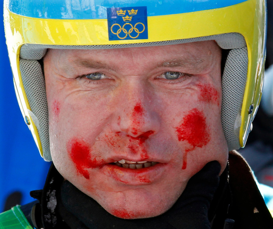 . Sweden\'s Patrik Jaerbyn, his face covered in blood, receives assistance after crashing during the Men\'s super-G, at the Vancouver 2010 Olympics in Whistler, British Columbia, Friday, Feb. 19, 2010. (AP Photo/Luca Bruno)