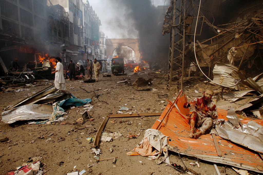 . An injured man, right, waits for help at the site of a blast shortly after a car explosion in Peshawar, Pakistan, Sunday, Sept. 29, 2013.  (AP Photo/Mohammad Sajjad)