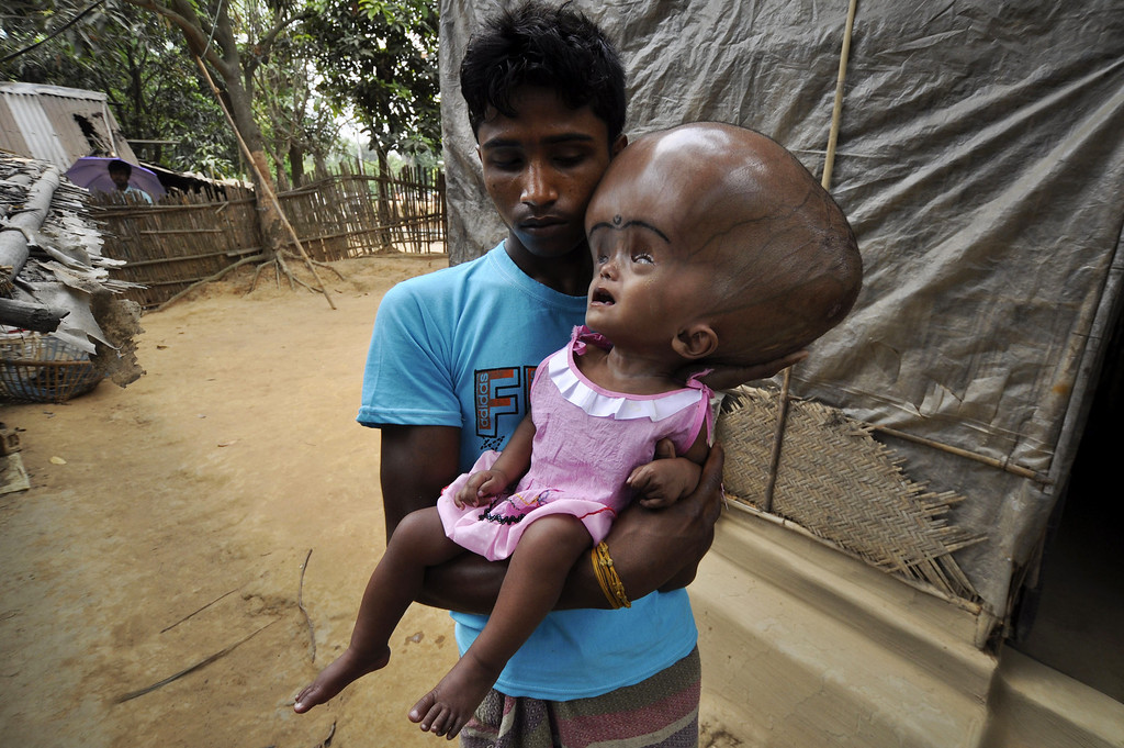 . Indian daily laborer, Abdul Rahman, 26,  holds his 18 month old daughter, Roona Begum, suffering from Hydrocephalus,a buildup of fluid inside the skull that leads to brain swelling,  in front of their home in Jirania village on the outskirts of Agartala, the capital of northeastern state of Tripura on April 12, 2013. AFP PHOTO/ STR-/AFP/Getty Images