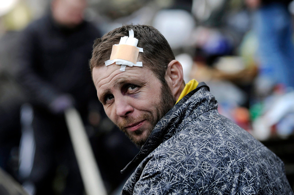 . An Ukranian anti-government protester wounded on his head is seen at Independence Square during continuing protest in downtown Kiev, Ukraine, 21 February 2014.  EPA/LASZLO BELICZAY  EPA/