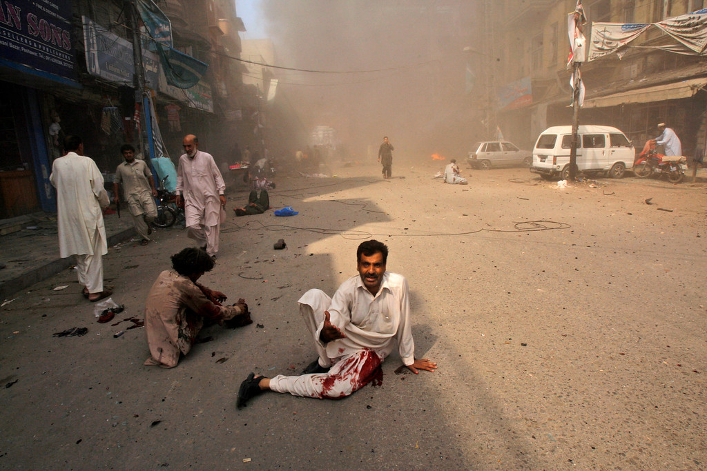 . Injured men lay on the ground waiting for help moments after a car bomb attack in Peshawar, Pakistan, Sunday, Sept. 29, 2013. (AP Photo/Mohammad Sajjad)