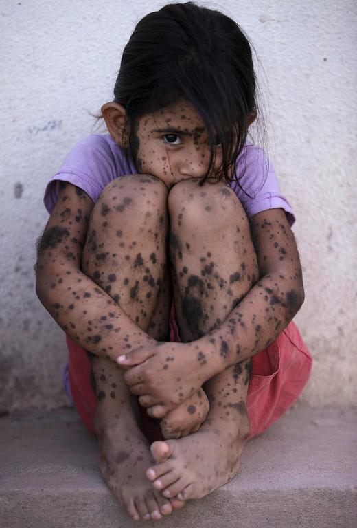 . Aixa Cano, 5, who has hairy moles all over her body that doctors can\'t explain, sits on a stoop outside her home in Avia Terai, in Chaco province, Argentina on April 1, 2013. Although it\'s nearly impossible to prove, doctors say Aixa\'s birth defect may be linked to agrochemicals. In Chaco, children are four times more likely to be born with devastating birth defects since biotechnology dramatically expanded farming in Argentina. Chemicals routinely contaminate homes, classrooms and drinking water. (AP Photo/Natacha Pisarenko)