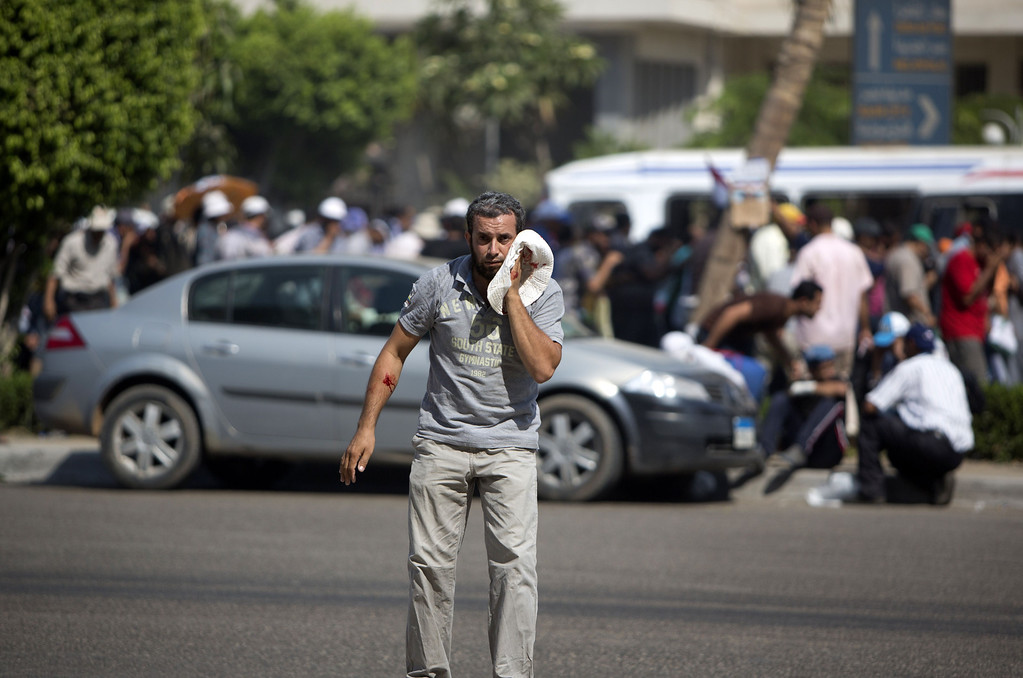 . A supporter of ousted Egyptian president Mohamed Morsi reacts after being wounded during a gun battle outside the Cairo headquarters of the Republican Guard on July 5, 2013. At least three supporters of Morsi were killed and many others were wounded as they gathered for a protest, an AFP correspondent said. Shooting could be heard coming from both the Republican Guard and the ranks of the protesters. MAHMUD HAMS/AFP/Getty Images