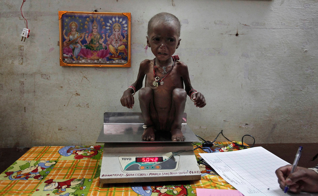 """. Severely malnourished two-year-old girl Rajni is weighed by health workers at the Nutritional Rehabilitation Centre of Shivpuri district in the central Indian state of Madhya Pradesh February 1, 2012. India has failed to reduce its high prevalence of child malnutrition despite its economy doubling between 1990 and 2005 to become Asia\'s third largest. A government-supported survey last month said 42 percent of children under five are underweight - almost double that of sub-Saharan Africa - compared to 43 percent five years ago. The statistic - which means 3,000 children dying daily due to illnesses related to poor diets - forced Prime Minister Manmohan Singh to admit last month that malnutrition was \""""a national shame\"""" and was putting the health of the nation in jeopardy. REUTERS/Adnan Abidi"""