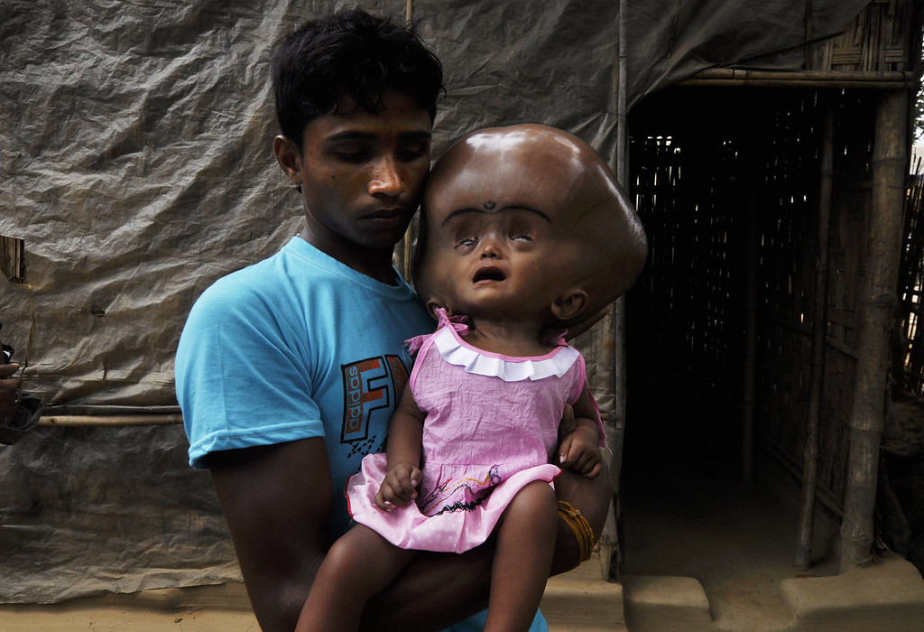 . Indian daily laborer, Abdul Rahman, 26,  holds his 18 month old daughter, Roona Begum, suffering from Hydrocephalus,a buildup of fluid inside the skull that leads to brain swelling,  in front of their home in Jirania village on the outskirts of Agartala, the capital of northeastern state of Tripura on April 12, 2013.  AFP PHOTO/ STR ARINDAM DEY/AFP/Getty Images