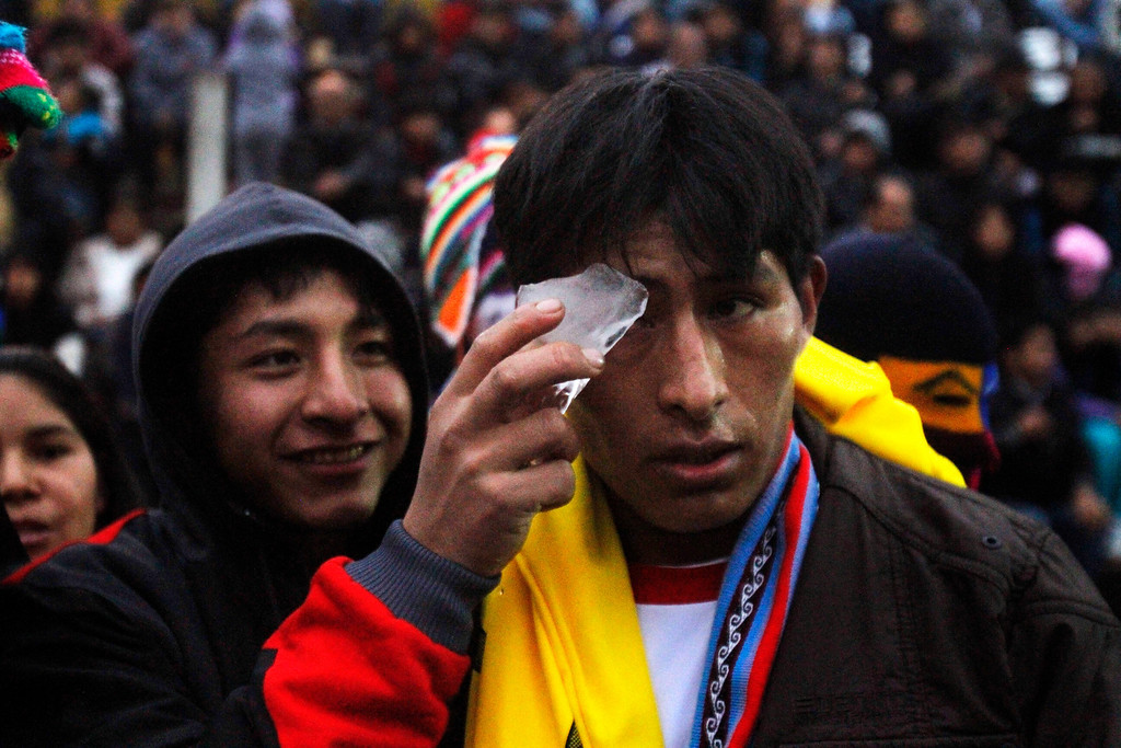 . Jose Vera, left, puts ice over the eye of his brother Rolando Vera who participated in a Takanakuy ritual fight in Lima, Peru. Often with faces swollen and bloodied, the fighters shake hands or hug and deem their personal dispute settled. Or else they agree to do battle again next year. (AP Photo/Karel Navarro)