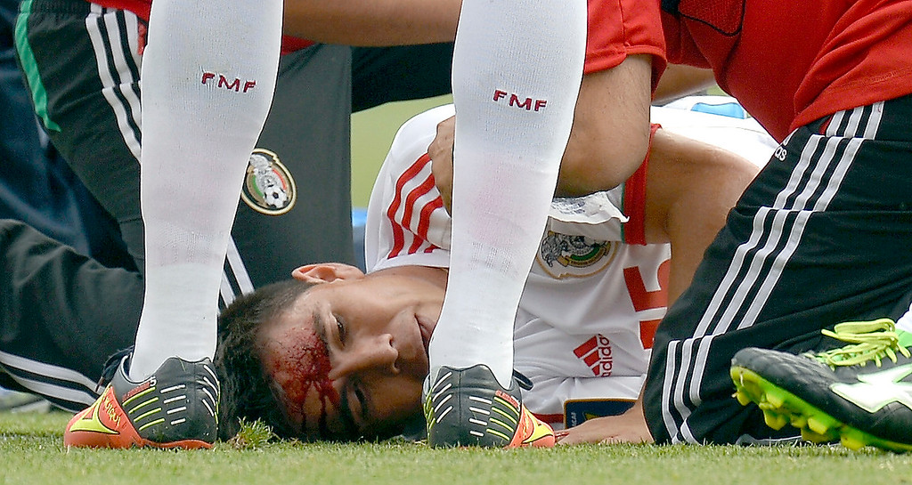 . Efrain Velarde #15 of Mexico lies on the ground as he bleeds from his forehead after colliding with a Martinique player going up for a header during the second half in the CONCACAF Gold Cup soccer game July 14, 2013 at Sports Authority Field at Mile High. Mexico defeated Martinique 3-1. (Photo By John Leyba/The Denver Post)