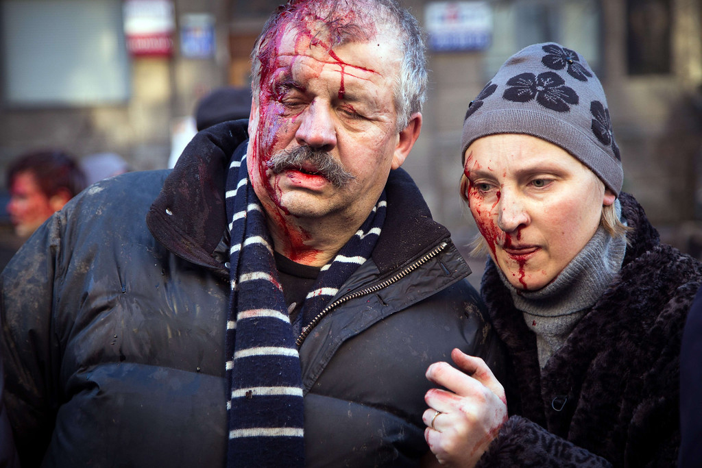 . Anti-government protesters are wounded after the clash with the police in Kiev on February 18, 2014.  AFP PHOTO/ OLEKSANDR RATUSHNIAK/AFP/Getty Images