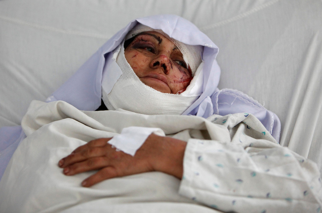 . A wounded Afghan woman lies at the hospital after a suicide attack in Kabul May 16, 2013.  REUTERS/Mohammad Ismail