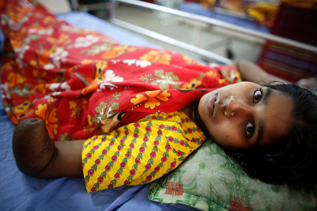 . Marium, 16, a garment worker rescued from the rubble of the collapsed Rana Plaza building, lies on a bed at the National Institute of Traumatology and Orthopaedic Rehabilitation (NITOR) in Dhaka July 4, 2013. A rescue worker had to amputate a part of her arm to save her. The April 24 collapse of the Rana Plaza complex, built on swampy ground outside Dhaka with several illegal floors, killed 1,132 workers and focused international attention on sometimes lax safety standards in Bangladesh\'s booming garment industry. At least five different Bangladesh agencies have dispatched teams to start inspecting the country\'s thousands of garment factories, but there has been little coordination between them. More than four million people, mostly women, work in Bangladesh\'s clothing sector, which is the country\'s largest employment generator, with annual exports worth $21 billion.   REUTERS/Andrew Biraj