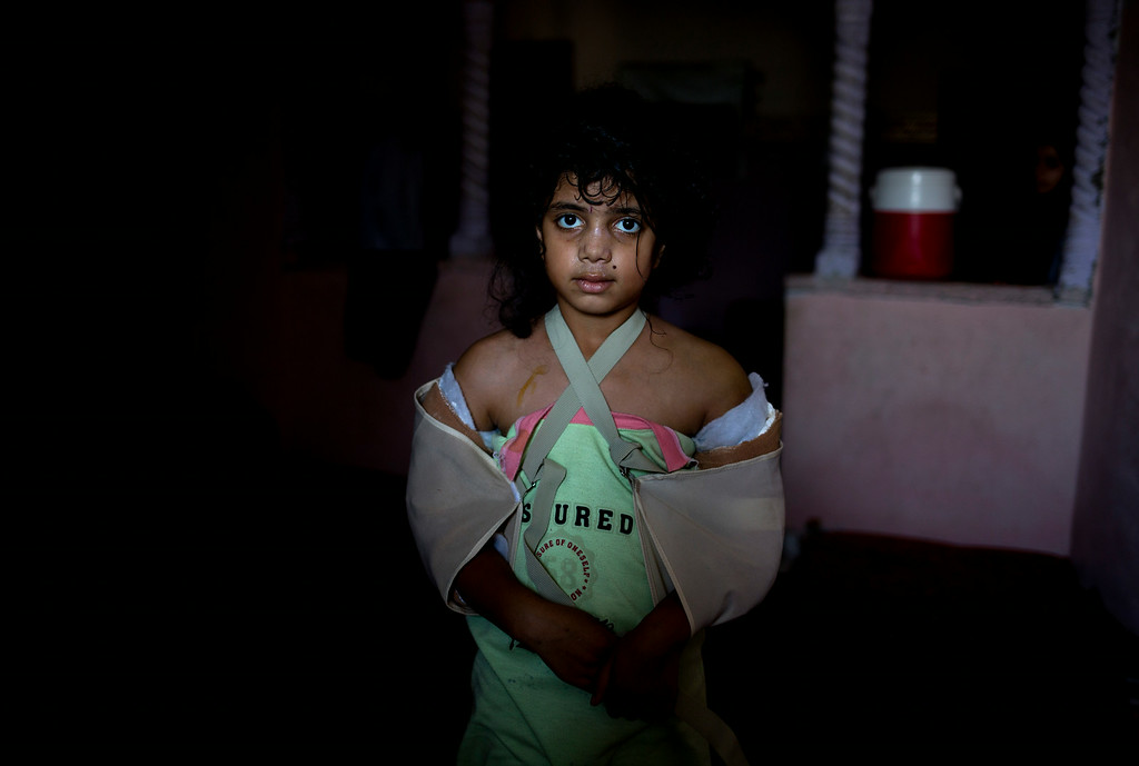 . In this photo made on Friday, Aug. 8, 2014, 9-year-old Saja Zorb, stands in her aunt\'s home in Rafah, Gaza Strip. Saja was severely wounded in both arms in an Israeli air strike on her family home in which her mother and four brothers were killed. More than 9,000 Palestinians, the majority of them civilians and nearly a third among them children, have been wounded in the month long Gaza war. (AP Photo/Dusan Vranic)
