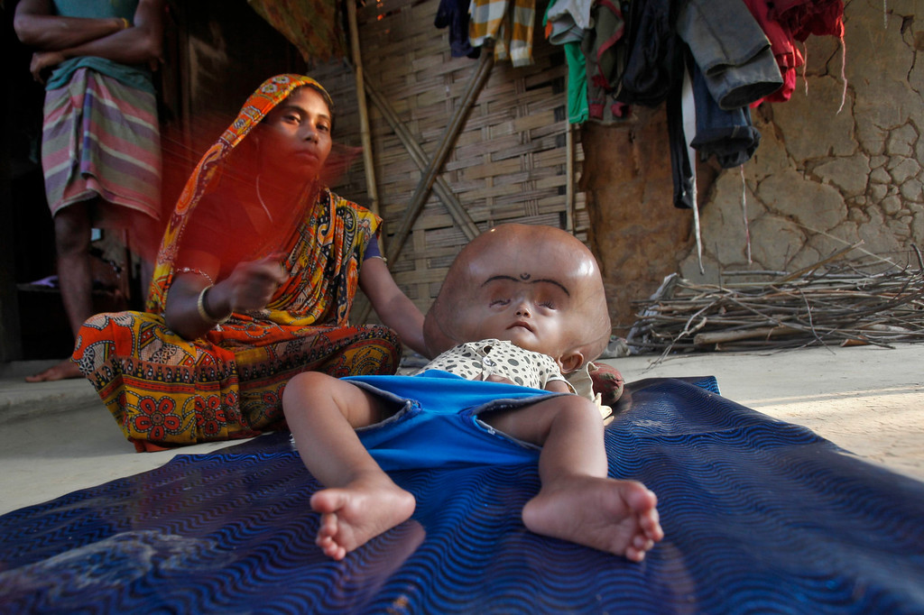 . Fatima fans her 16-month-old daughter Runa Begum, who suffers from Hydrocephalus, a medical condition that causes abnormal accumulation of fluid in cavities of the brain, inside their house at Jirania Khola village in India\'s northeastern state of Tripura April 12, 2013.  REUTERS/Jayanta Dey