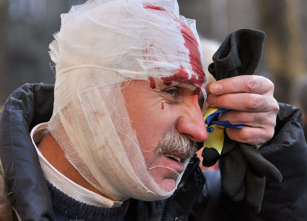 . Injured protester during the continuing protest in downtown Kiev, Ukraine, 18 February 2014.  EPA/DANYLO PRYHODKO