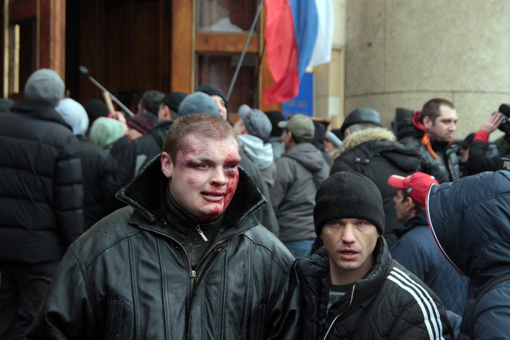. An injured man looks on as pro-Russian activists clash with Maidan supporters as they storm the regional government building in Kharkiv on March 1, 2014.  AFP PHOTO/ SERGEY  BOBOK/AFP/Getty Images