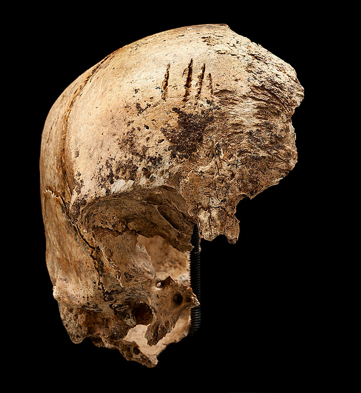 . Four shallow chops to an incomplete skull excavated in James Fort, Jamestown, Virginia at the Jamestown Rediscovery Project are pictured in this August 2012 handout photo provided by the Smithsonian Institute on May 1, 2013. Settlers at Virginia\'s Jamestown Colony resorted to cannibalism to survive the harsh winter of 1609, dismembering and consuming a 14-year-old English girl, the U.S. Smithsonian Institution reported on May 1, 2013.  REUTERS/Donald Hurlbert/Smithsonian Institute/Handout
