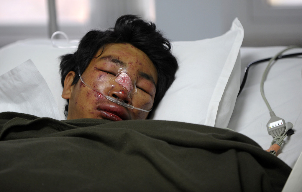 . Nepalese mountaineer, Dawa Tashi Sherpa, survivor of an avalanche on Mount Everest, lies in the Intensive Care Unit (ICU) at Grandi International Hospital in Kathmandu on April 18, 2014. At least 12 Nepalese guides preparing routes up Mount Everest for commercial climbers were killed by an avalanche in the most deadly mountaineering accident ever on the world\'s highest peak, officials and rescuers say. The men were among a large party of Sherpas carrying tents, food and ropes who headed out in bright sunshine in an early morning expedition ahead of the main climbing season starting later this month. PRAKASH MATHEMA/AFP/Getty Images