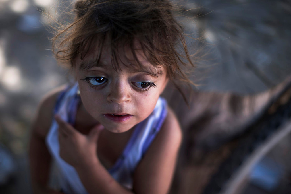 """. Camila Veron, 2, born with multiple organ problems and severely disabled, stands outside her home in Avia Terai, in Chaco province, Argentina on March 31, 2013. Doctors told Camila\'s mother, Silvia Achaval that agrochemicals may be to blame. It\'s nearly impossible to prove that exposure to a specific chemical caused an individual\'s cancer or birth defect, but doctors say these cases merit a rigorous government investigation. \""""They told me that the water made this happen, because they spray a lot of poison here,\"""" said Achaval. (AP Photo/Natacha Pisarenko)"""