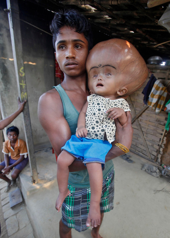 . Abdul Rehman holds his 16-month-old daughter Runa Begum, who suffers from Hydrocephalus, a medical condition that causes abnormal accumulation of fluid in cavities of the brain, inside their house at Jirania Khola village in India\'s northeastern state of Tripura April 12, 2013.  REUTERS/Jayanta Dey